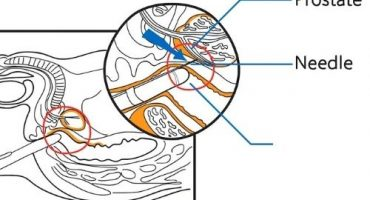 Transperineal Prostat Biyopsisi