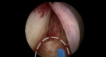 holep ameliyatının maliyeti