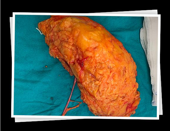 böbrek-tümörü